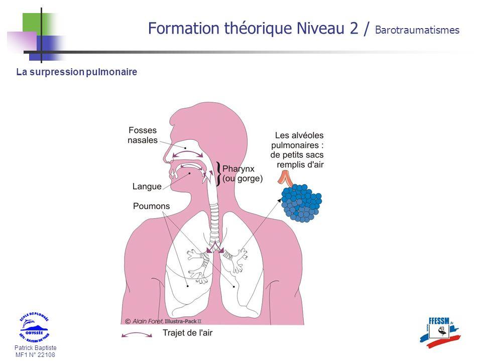 Patrick Baptiste MF1 N° 22108 La surpression pulmonaire Formation théorique Niveau 2 / Barotraumatismes