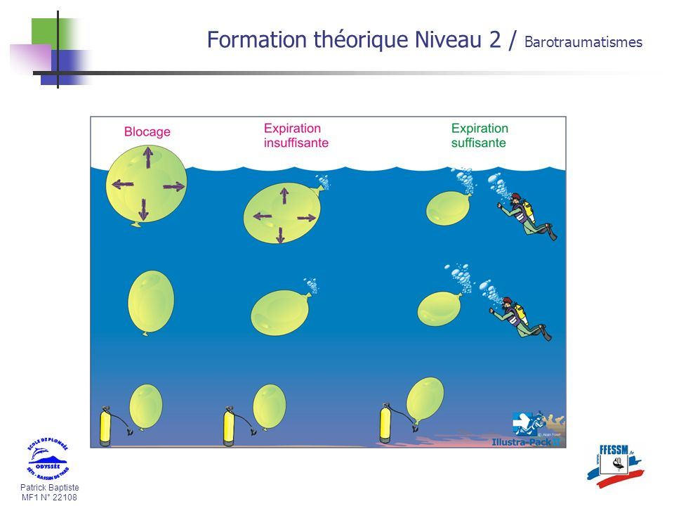 Patrick Baptiste MF1 N° 22108 Formation théorique Niveau 2 / Barotraumatismes