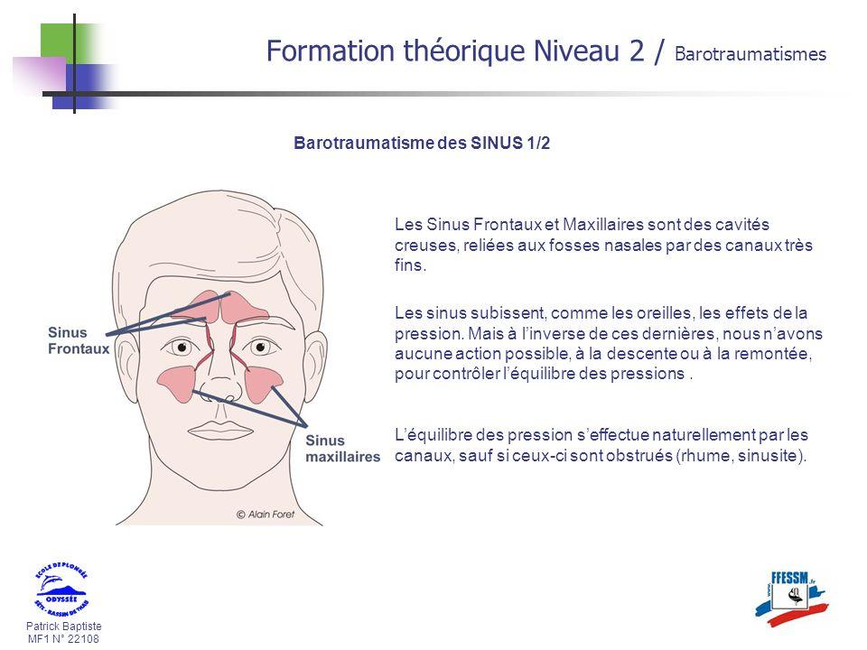 Patrick Baptiste MF1 N° 22108 Barotraumatisme des SINUS 1/2 Les Sinus Frontaux et Maxillaires sont des cavités creuses, reliées aux fosses nasales par