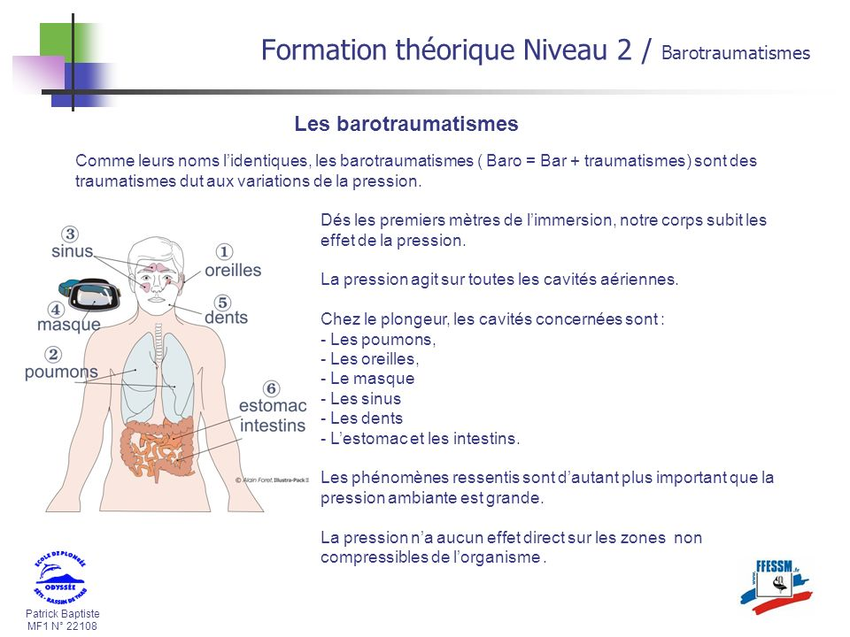 Patrick Baptiste MF1 N° 22108 Formation théorique Niveau 2 / Barotraumatismes Les barotraumatismes Comme leurs noms lidentiques, les barotraumatismes