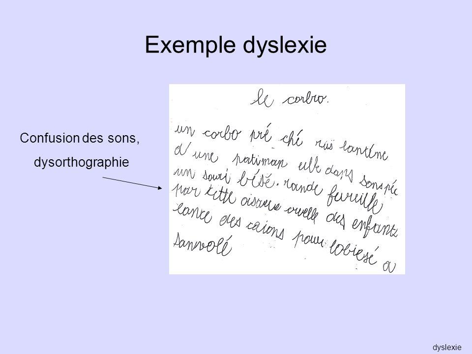 Exemple dyslexie Confusion des sons, dysorthographie dyslexie
