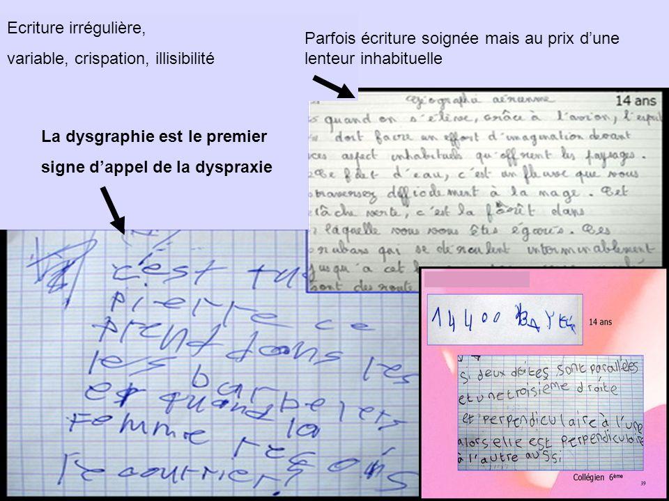 Ecriture irrégulière, variable, crispation, illisibilité La dysgraphie est le premier signe dappel de la dyspraxie Parfois écriture soignée mais au pr