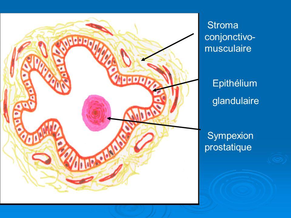 Stroma conjonctivo- musculaire Epithélium glandulaire Sympexion prostatique