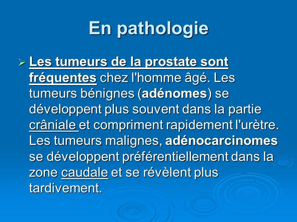En pathologie Les tumeurs de la prostate sont fréquentes chez l homme âgé.