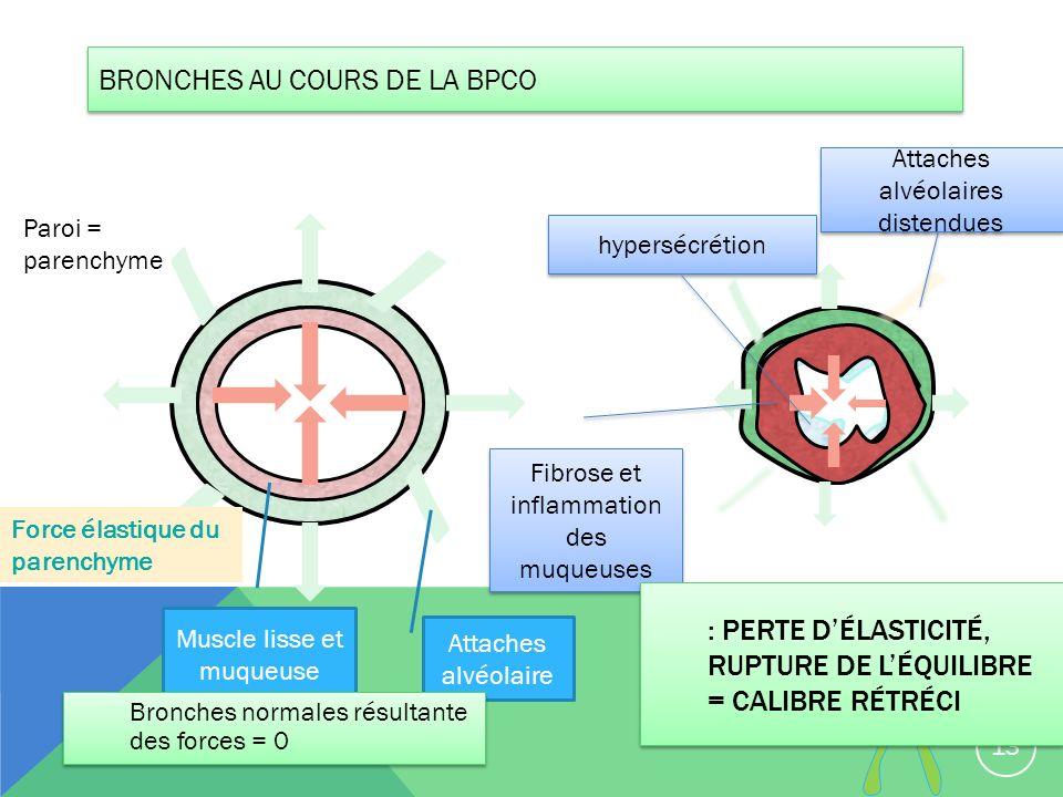 BRONCHES AU COURS DE LA BPCO 13 Paroi = parenchyme Attaches alvéolaire Attaches alvéolaires distendues Muscle lisse et muqueuse Fibrose et inflammatio