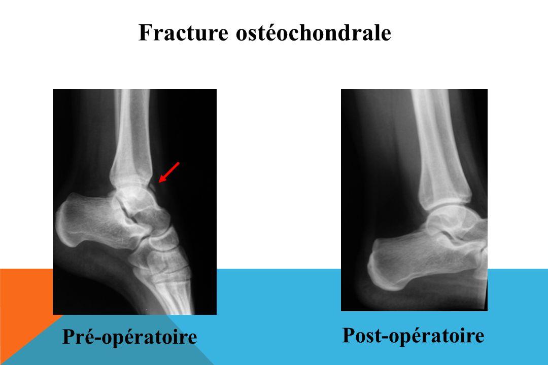 Fracture ostéochondrale Pré-opératoire Post-opératoire