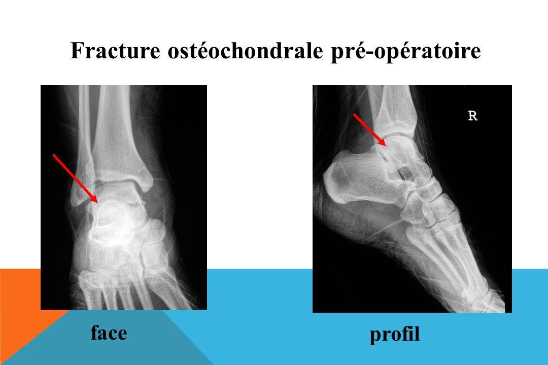 Fracture ostéochondrale pré-opératoire face profil
