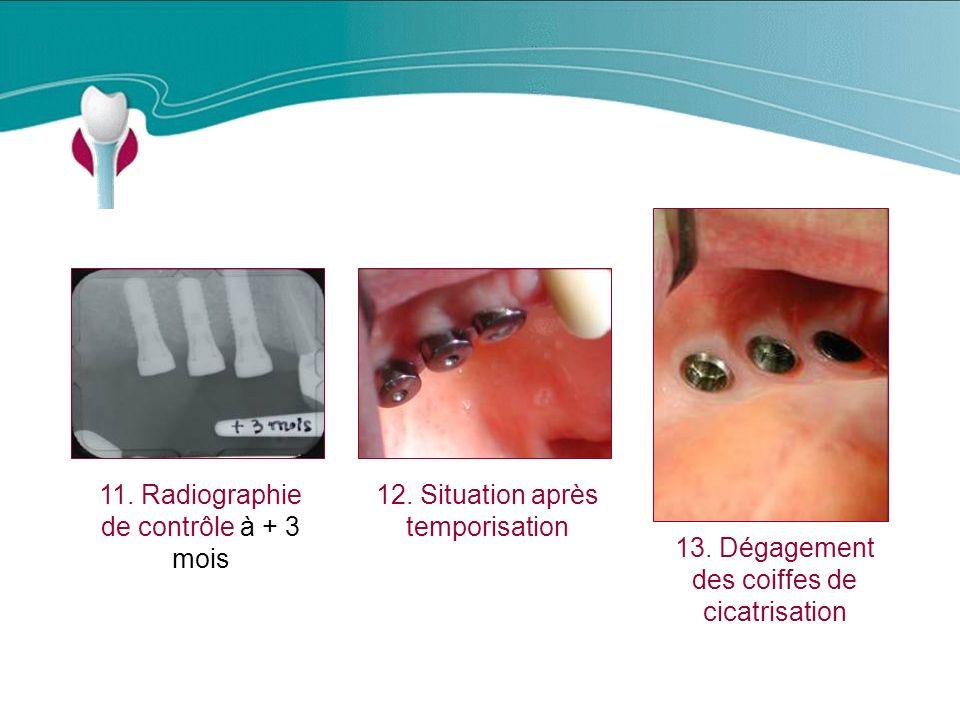 Cas Clinique n°12 11.Radiographie de contrôle à + 3 mois 12.