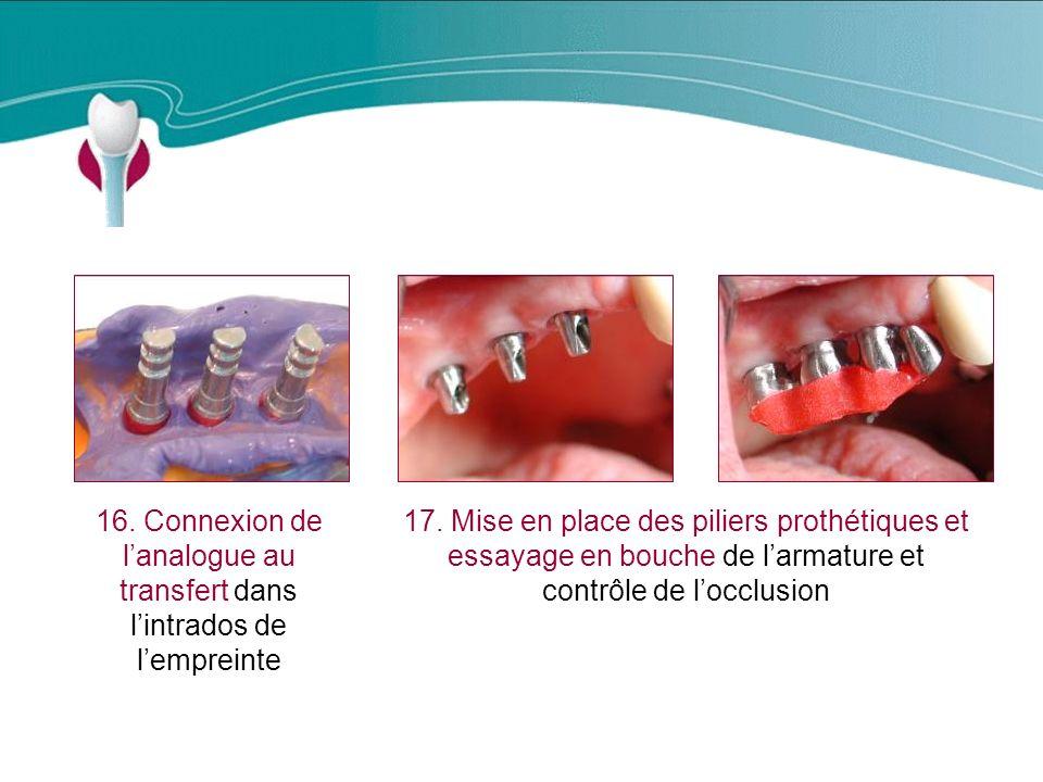 Cas Clinique n°12 16.Connexion de lanalogue au transfert dans lintrados de lempreinte 17.