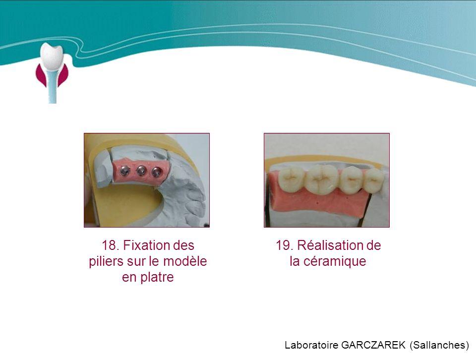 Cas Clinique n°12 18.Fixation des piliers sur le modèle en platre 19.
