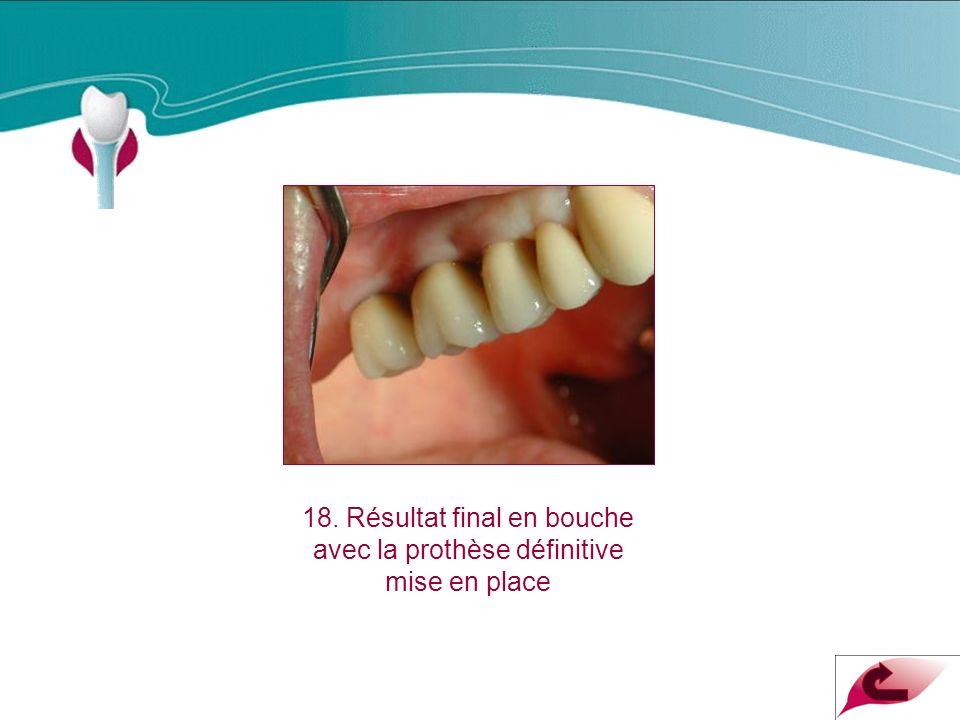 Cas Clinique n°12 18. Résultat final en bouche avec la prothèse définitive mise en place