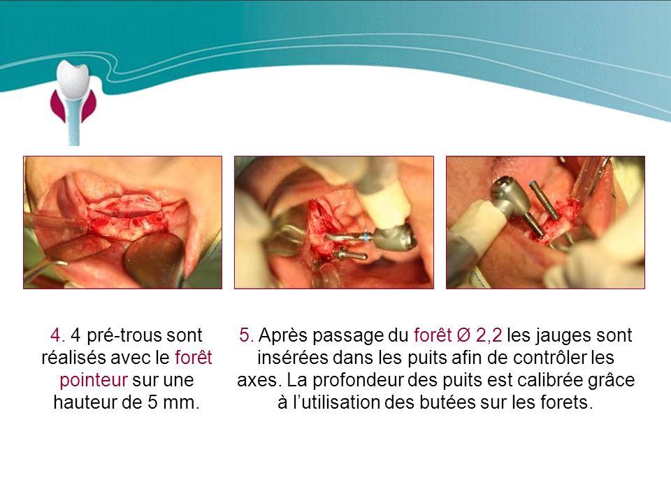 Cas Clinique n°13 4.4 pré-trous sont réalisés avec le forêt pointeur sur une hauteur de 5 mm.