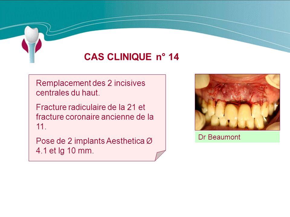 CAS CLINIQUE n° 14 Remplacement des 2 incisives centrales du haut.