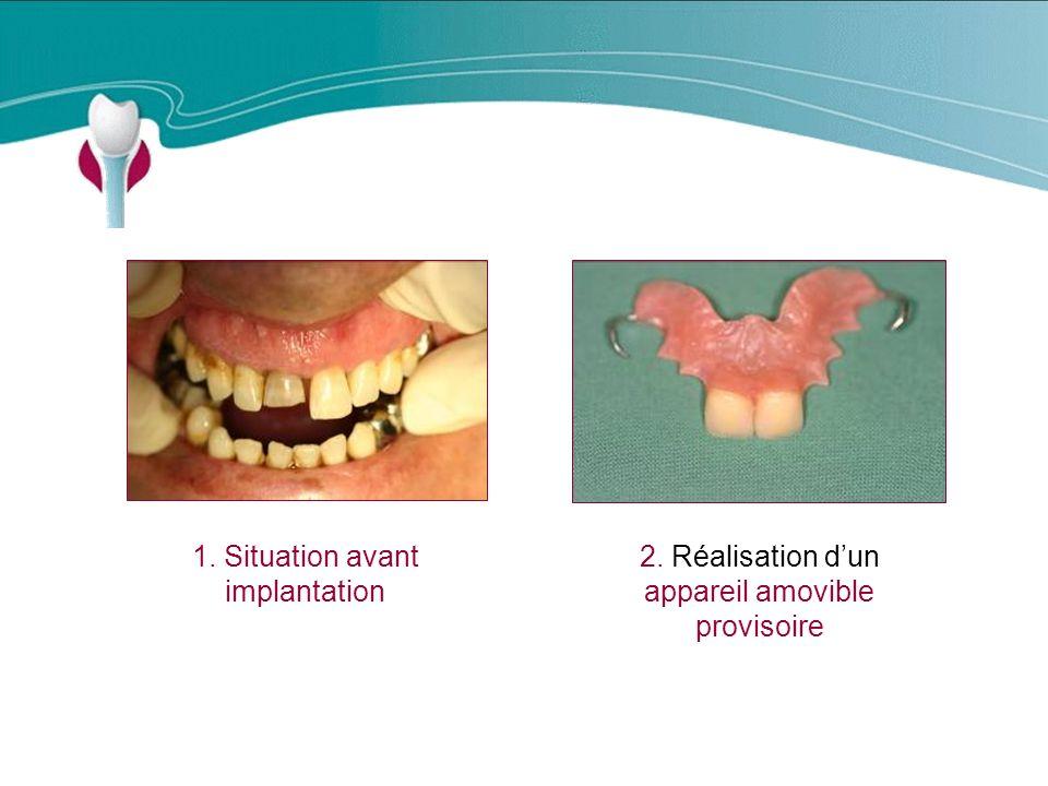 1. Situation avant implantation 2. Réalisation dun appareil amovible provisoire Cas Clinique n°14