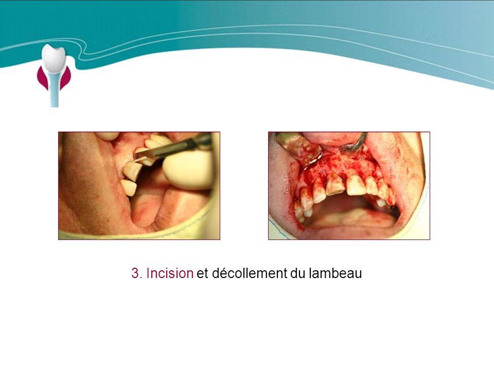 3. Incision et décollement du lambeau Cas Clinique n°14
