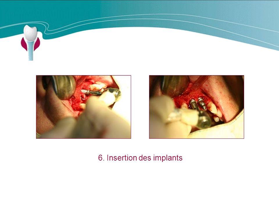 6. Insertion des implants Cas Clinique n°14