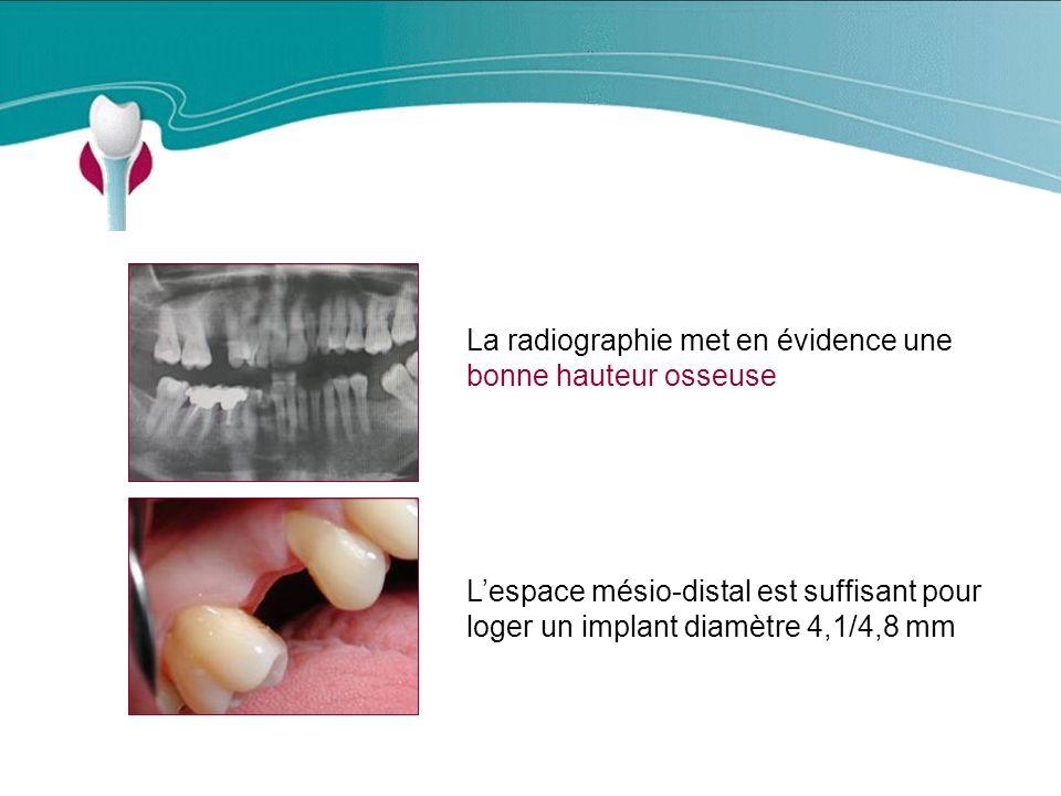 Cas Clinique n°2 Lespace mésio-distal est suffisant pour loger un implant diamètre 4,1/4,8 mm La radiographie met en évidence une bonne hauteur osseuse