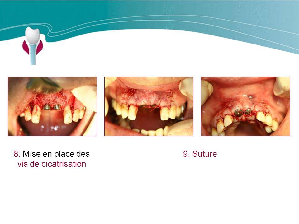 8. Mise en place des vis de cicatrisation 9. Suture Cas Clinique n°14