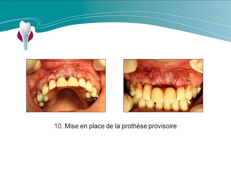 10. Mise en place de la prothèse provisoire Cas Clinique n°14