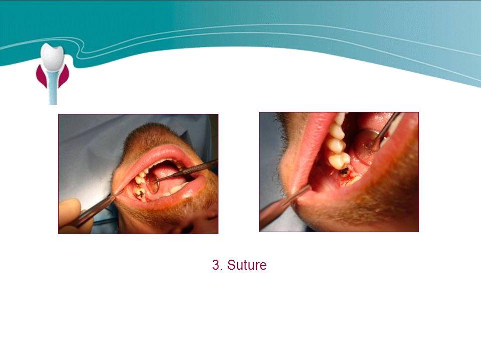 Cas Clinique n°15 3. Suture