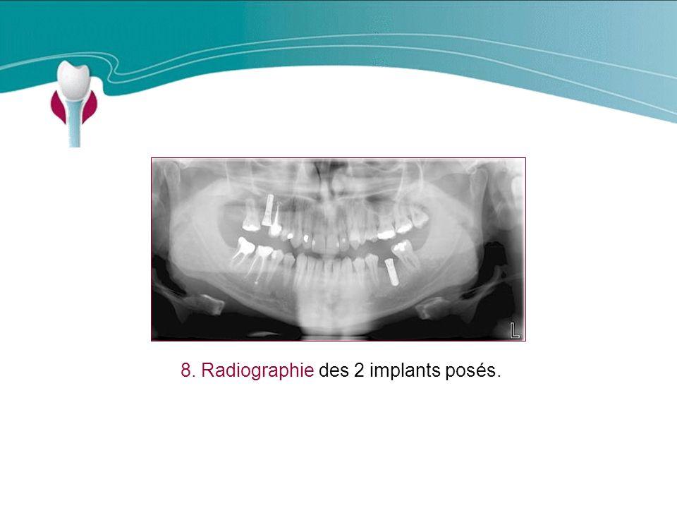 Cas Clinique n°15 8. Radiographie des 2 implants posés.
