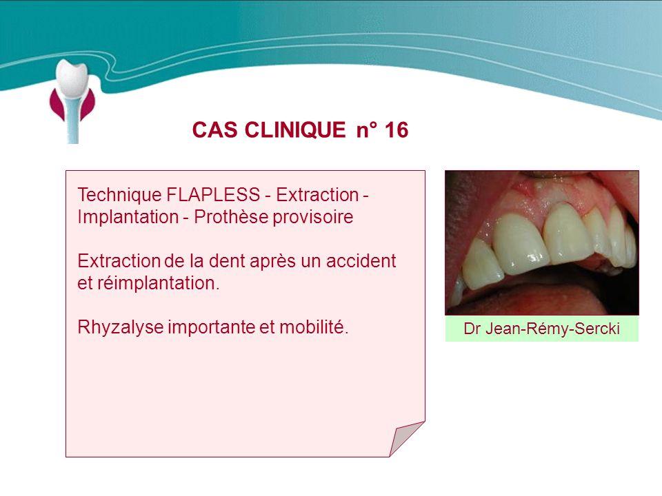 CAS CLINIQUE n° 16 Dr Jean-Rémy-Sercki Technique FLAPLESS - Extraction - Implantation - Prothèse provisoire Extraction de la dent après un accident et réimplantation.