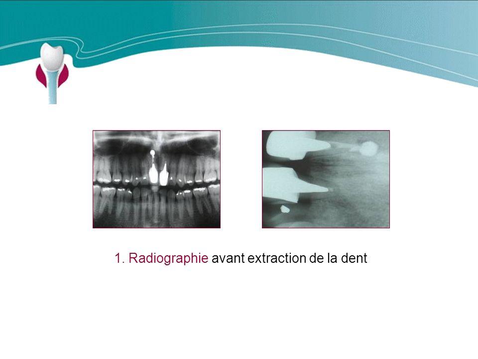 Cas Clinique n°16 1. Radiographie avant extraction de la dent