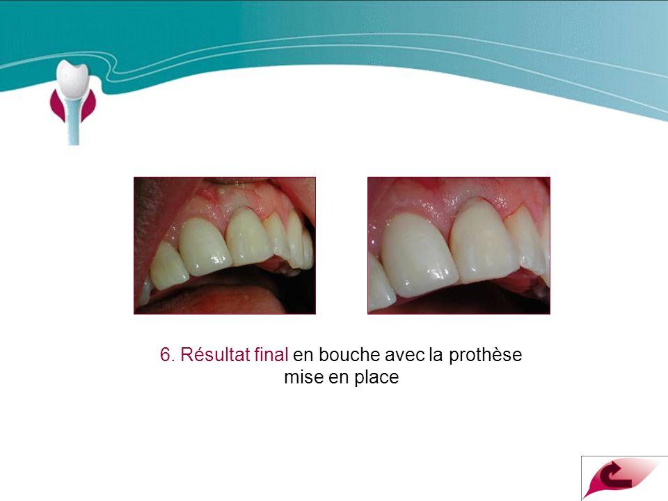 Cas Clinique n°16 6. Résultat final en bouche avec la prothèse mise en place