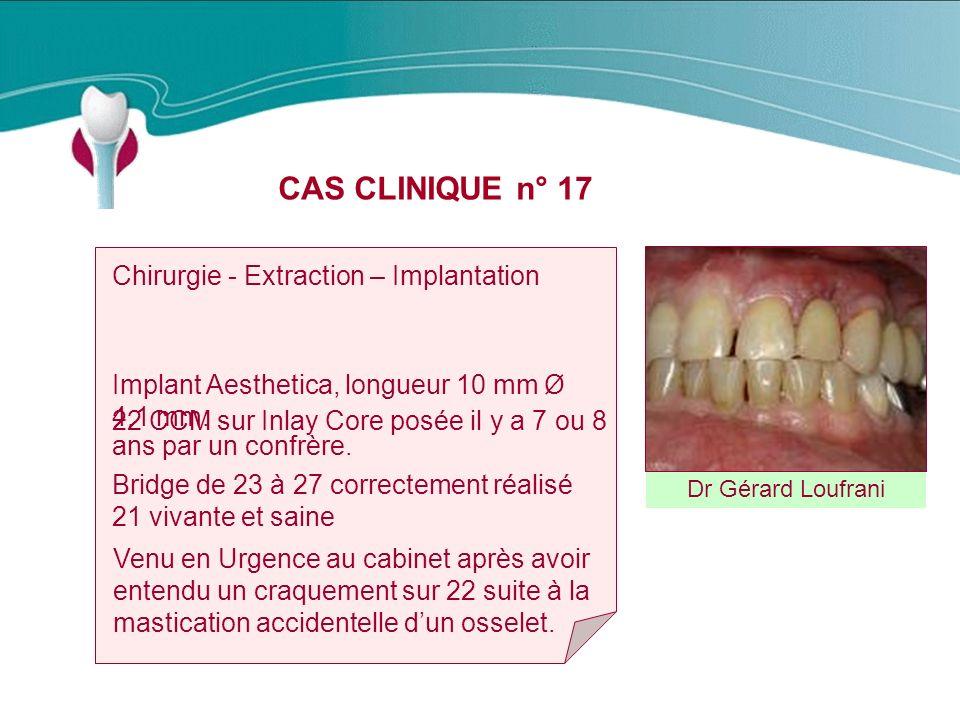 CAS CLINIQUE n° 17 Dr Gérard Loufrani Chirurgie - Extraction – Implantation Implant Aesthetica, longueur 10 mm Ø 4.1 mm.