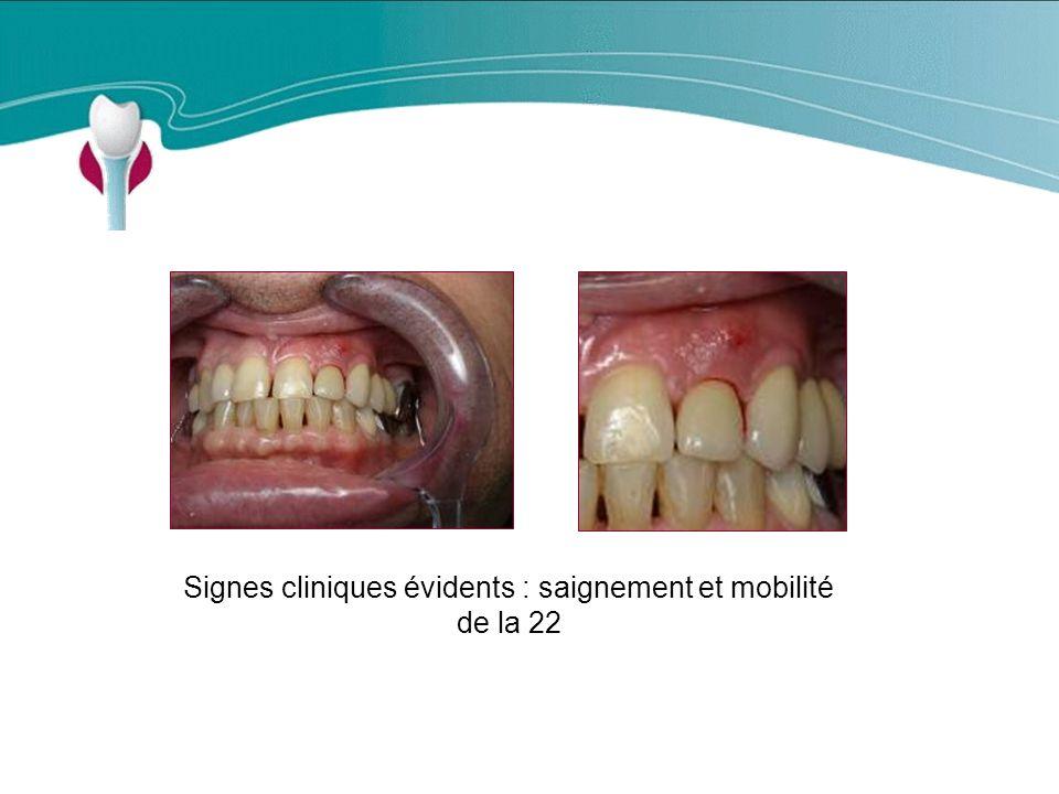 Signes cliniques évidents : saignement et mobilité de la 22 Cas Clinique n°17