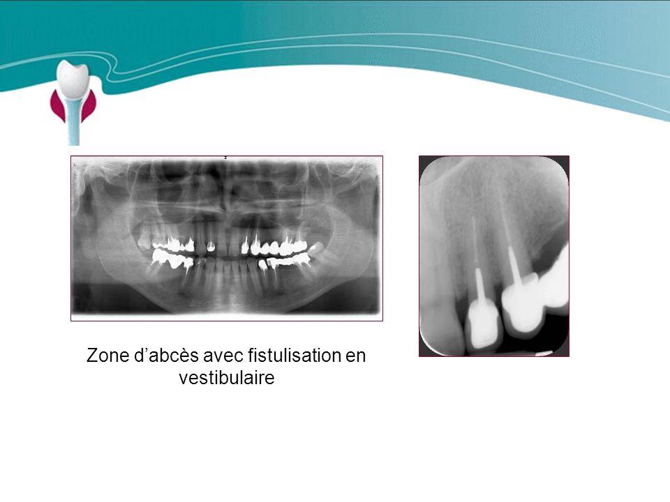 Zone dabcès avec fistulisation en vestibulaire