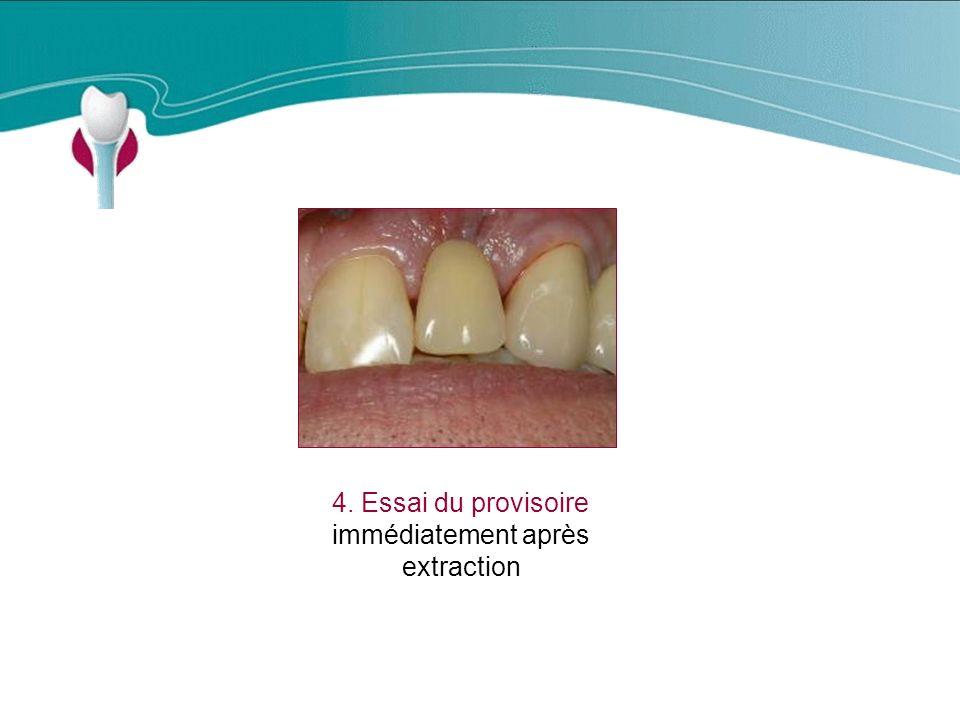 4. Essai du provisoire immédiatement après extraction Cas Clinique n°17