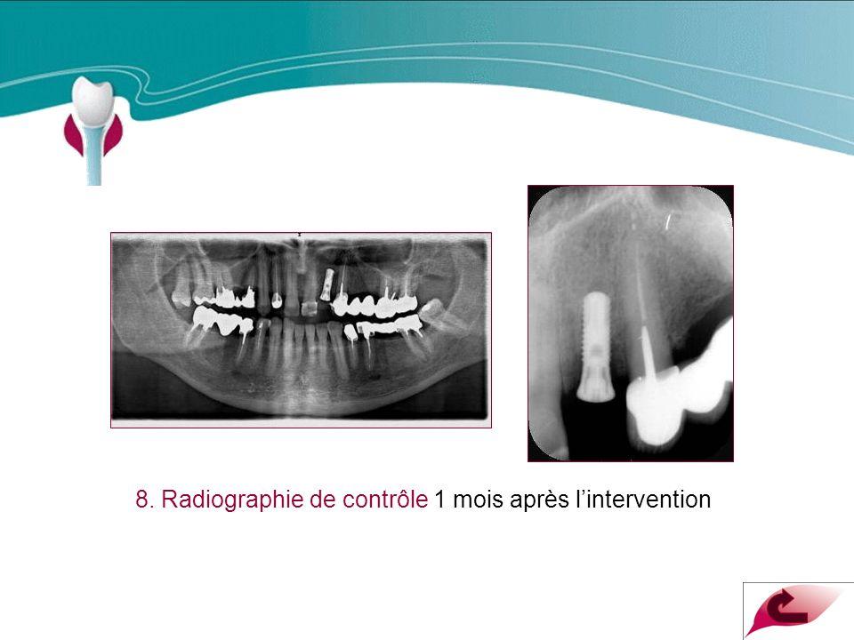 8. Radiographie de contrôle 1 mois après lintervention Cas Clinique n°17