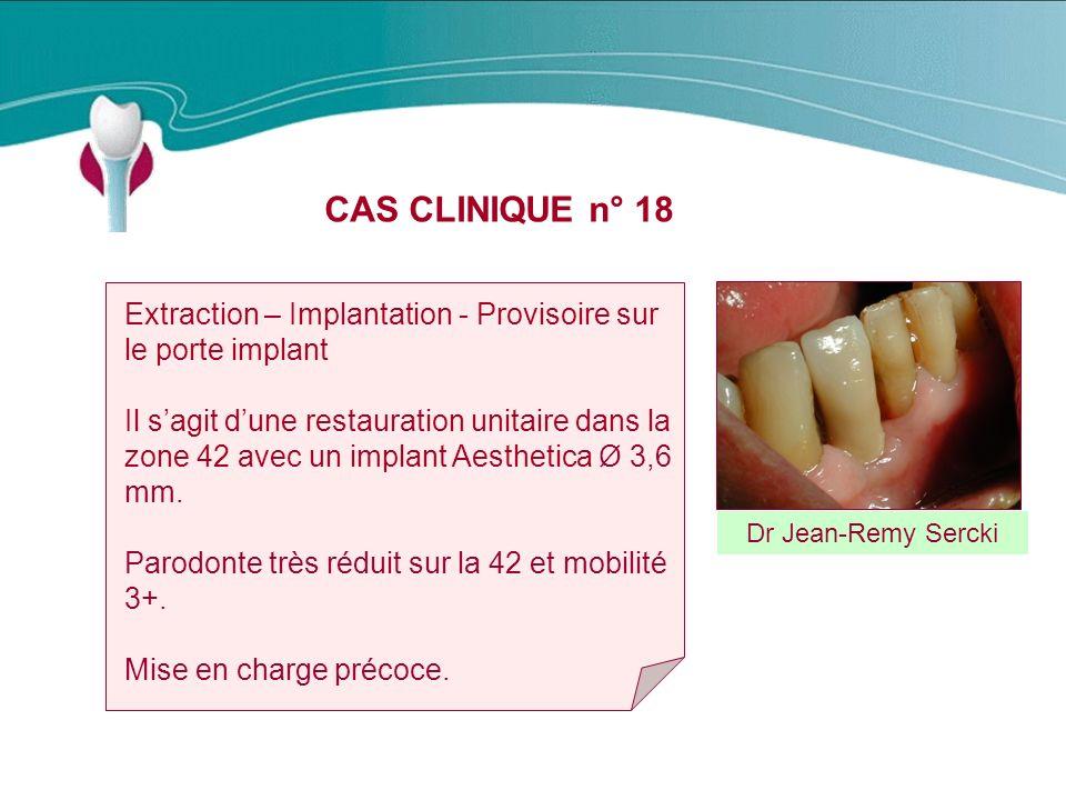 CAS CLINIQUE n° 18 Dr Jean-Remy Sercki Extraction – Implantation - Provisoire sur le porte implant Il sagit dune restauration unitaire dans la zone 42 avec un implant Aesthetica Ø 3,6 mm.