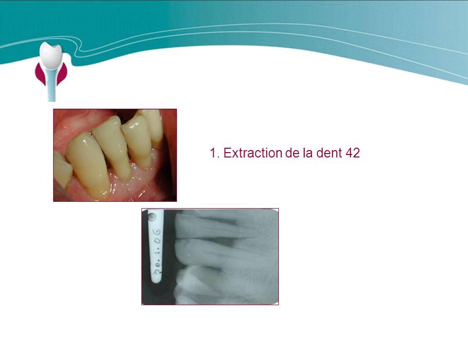 Cas Clinique n°18 1. Extraction de la dent 42