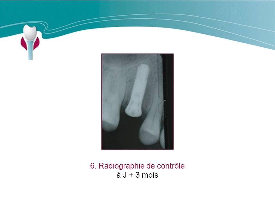 Cas Clinique n°2 6. Radiographie de contrôle à J + 3 mois