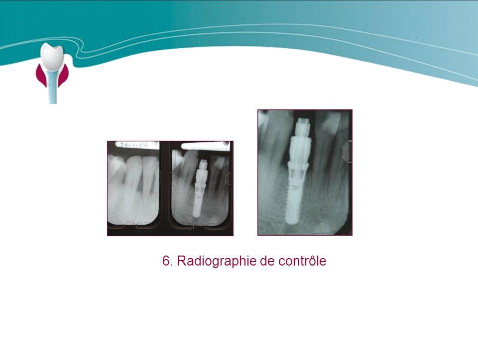 Cas Clinique n°18 6. Radiographie de contrôle