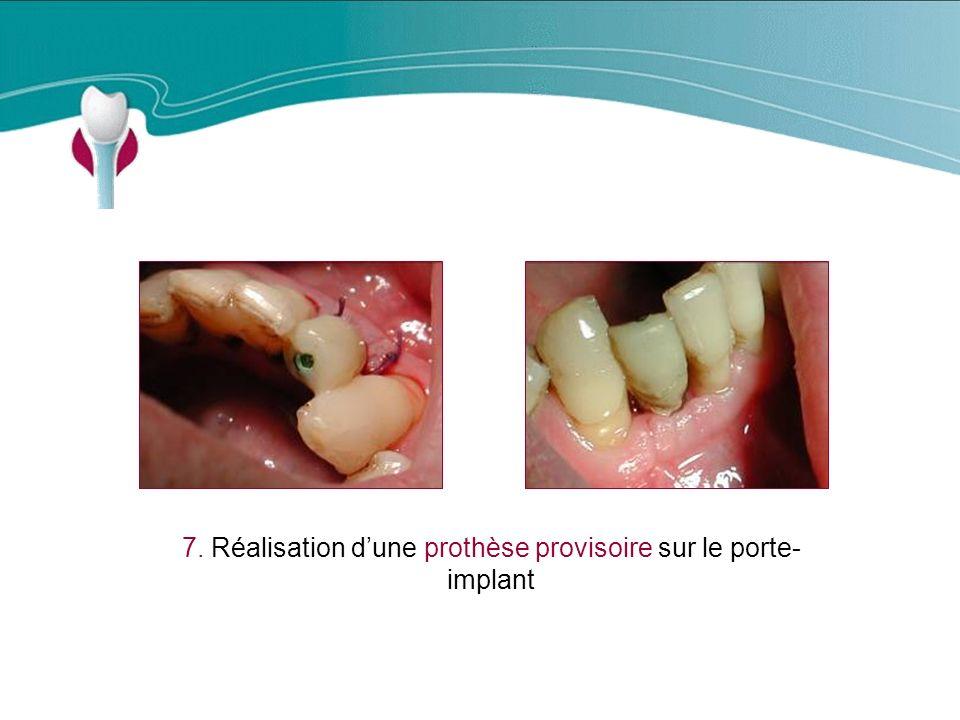 Cas Clinique n°18 7. Réalisation dune prothèse provisoire sur le porte- implant