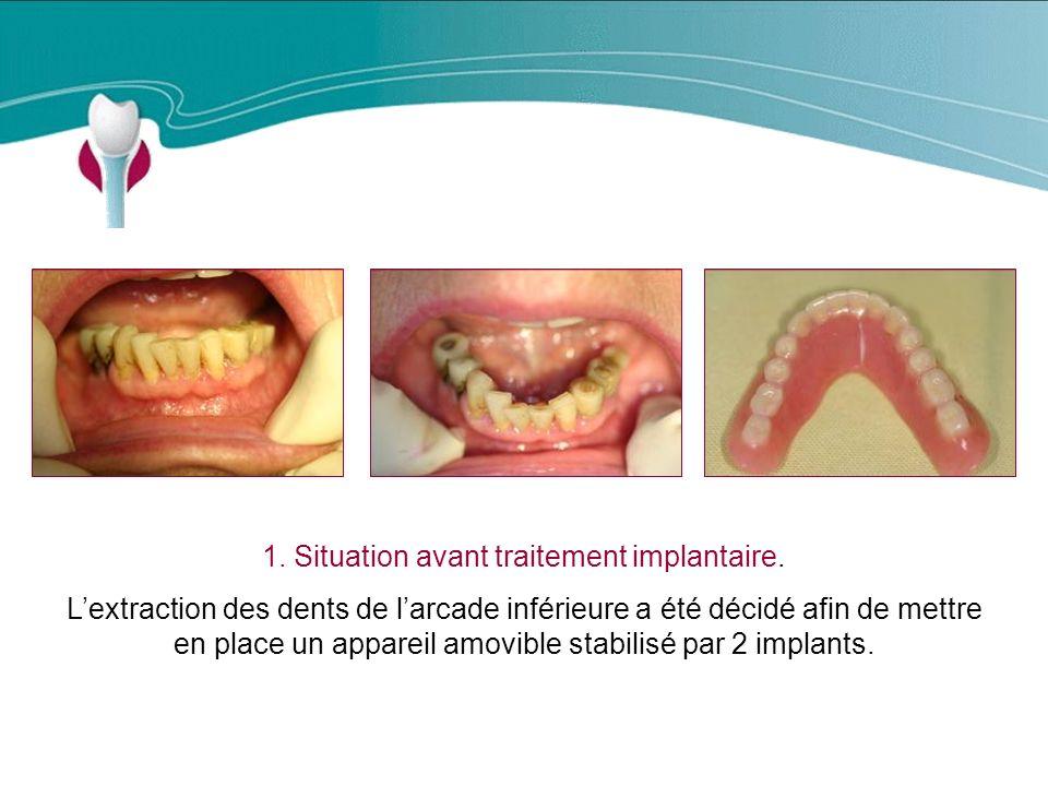 1.Situation avant traitement implantaire.