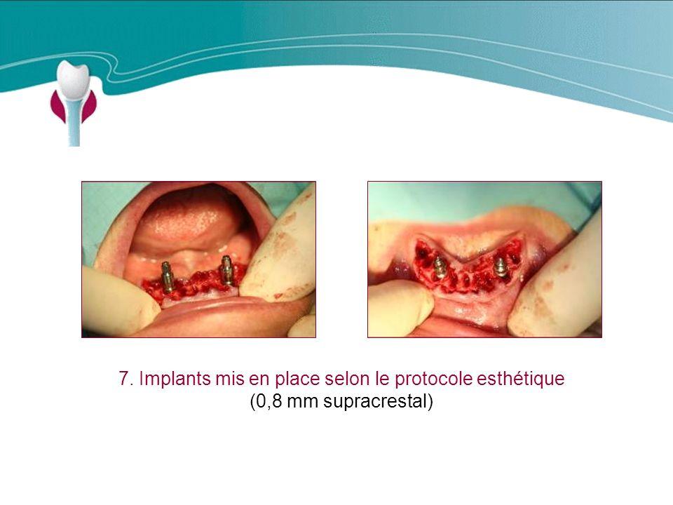 7. Implants mis en place selon le protocole esthétique (0,8 mm supracrestal) Cas Clinique n°19