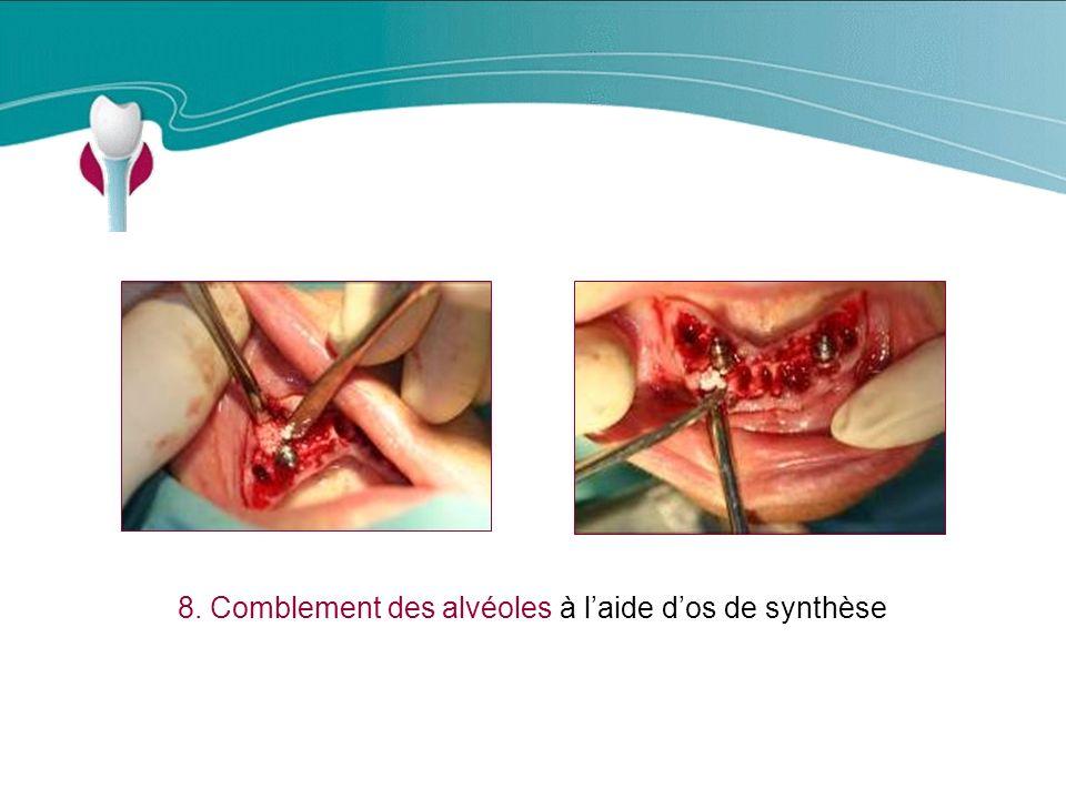 8. Comblement des alvéoles à laide dos de synthèse Cas Clinique n°19