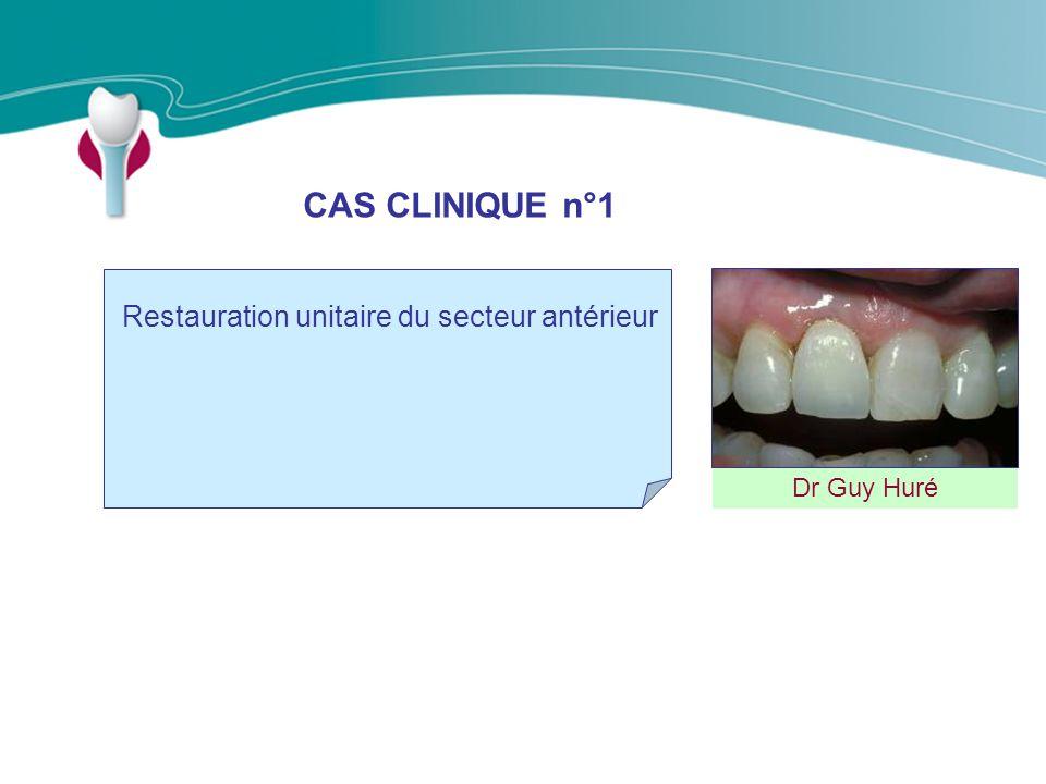 CAS CLINIQUE n°1 Dr Guy Huré Restauration unitaire du secteur antérieur