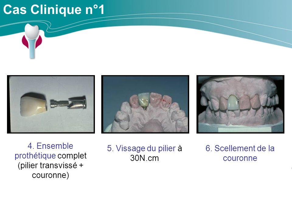Cas Clinique n°1 4.Ensemble prothétique complet (pilier transvissé + couronne) 5.