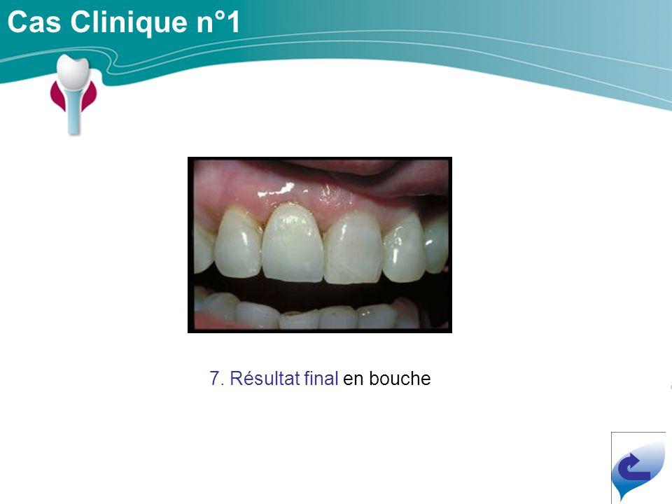 Cas Clinique n°1 7. Résultat final en bouche