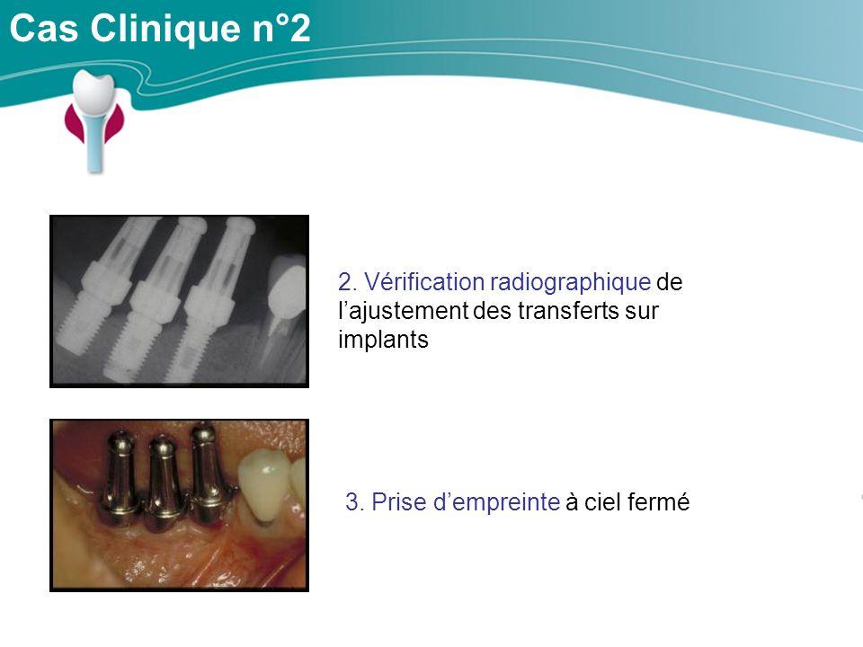 Cas Clinique n°2 2.Vérification radiographique de lajustement des transferts sur implants 3.