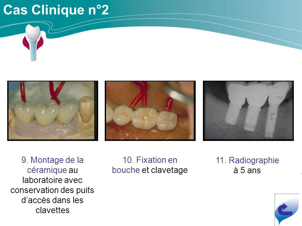 Cas Clinique n°2 9.