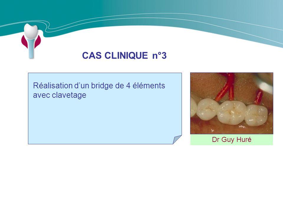CAS CLINIQUE n°3 Dr Guy Huré Réalisation dun bridge de 4 éléments avec clavetage