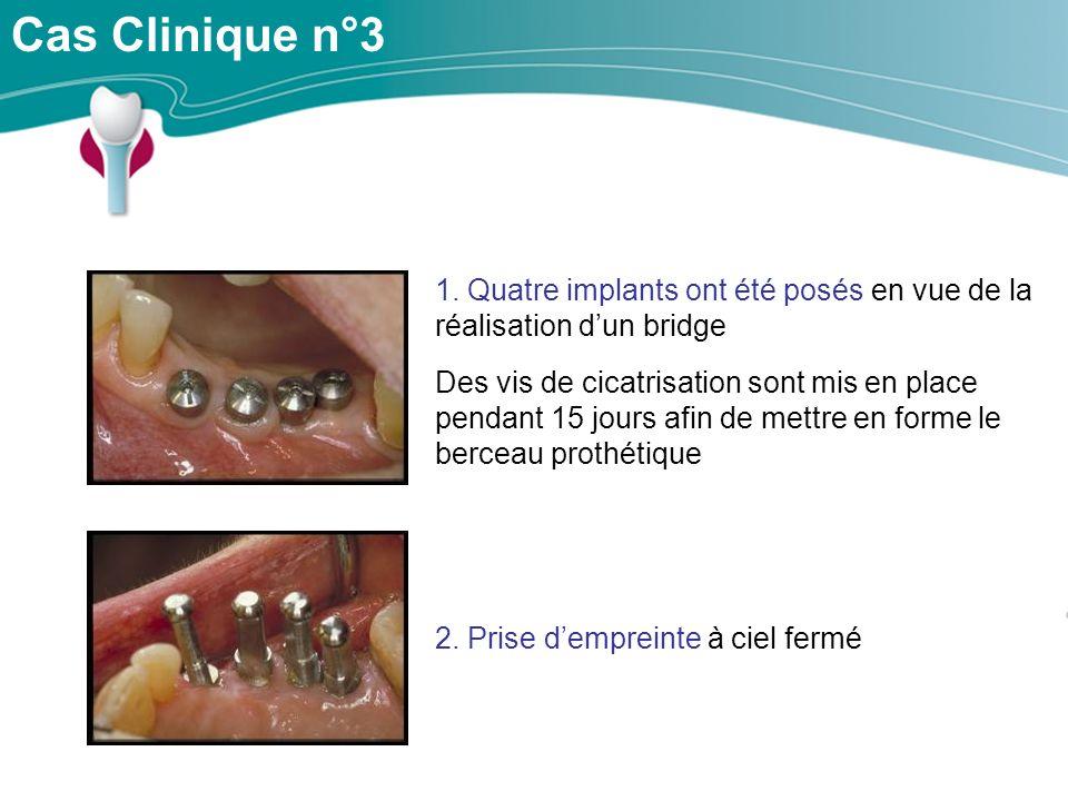 Cas Clinique n°3 1.
