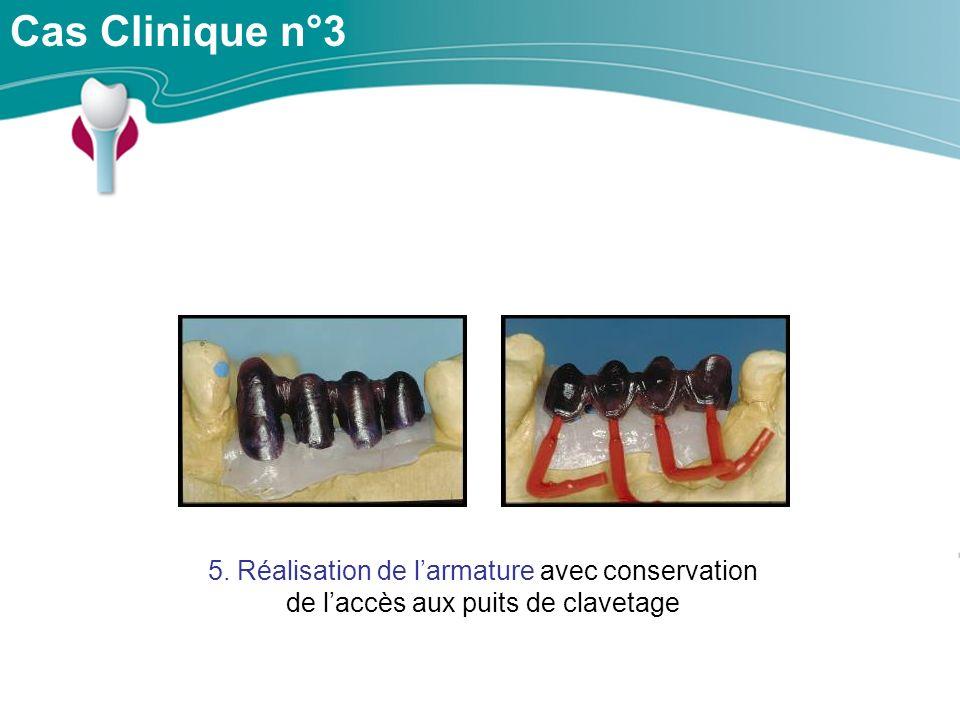 Cas Clinique n°3 5. Réalisation de larmature avec conservation de laccès aux puits de clavetage
