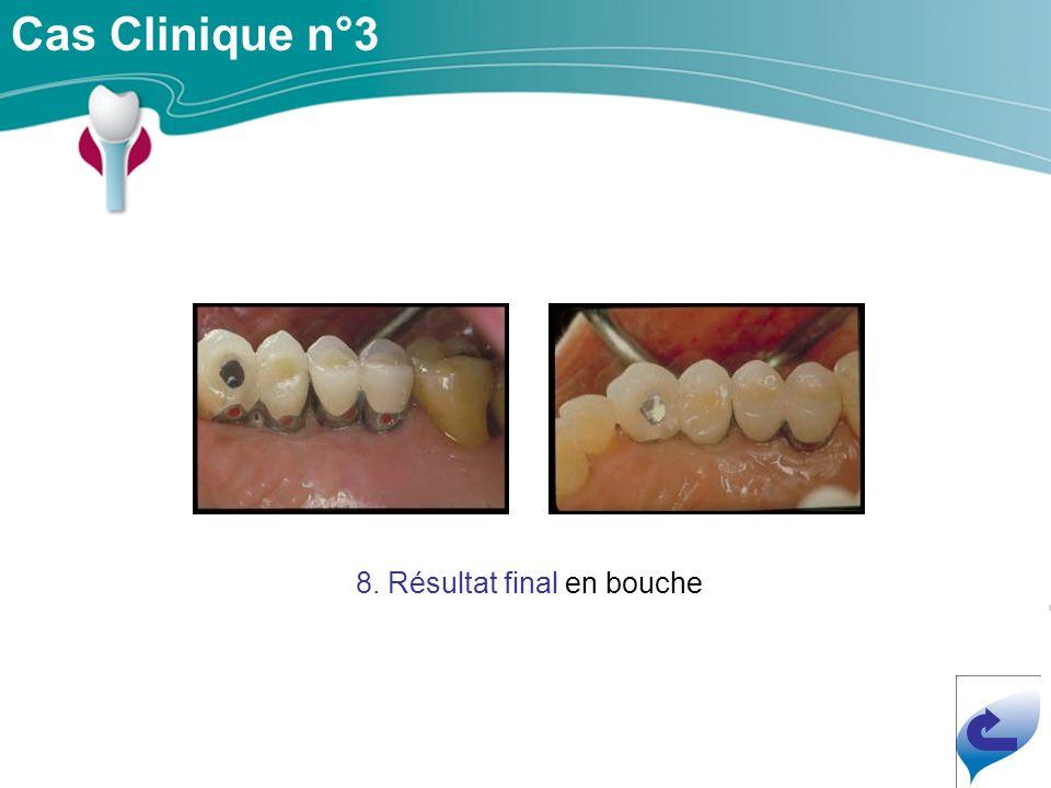 Cas Clinique n°3 8. Résultat final en bouche